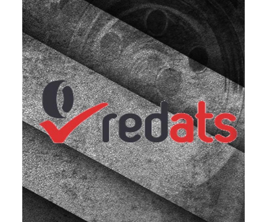TOP 10 populiariausių Redats įrangų autoservisams